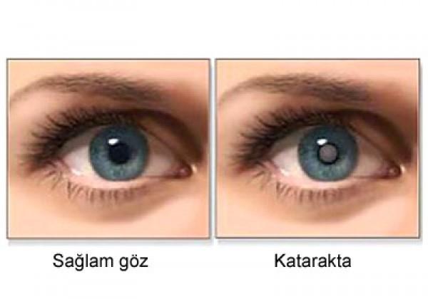Katarakta - İbn-sinadan