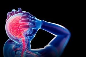 Beyin damarlarının sklerozu